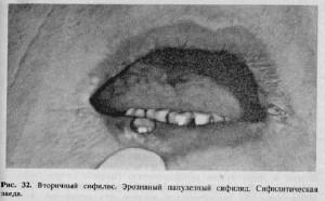 шранк фото сифилис
