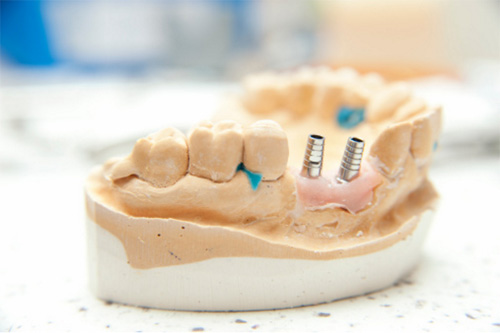 импланты_зубы