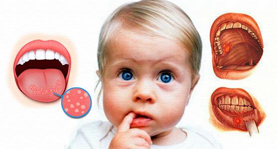 Как избавиться от стоматита во рту в домашних условиях