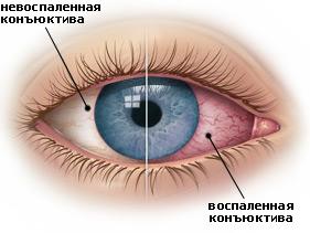 simptomy-konjunktivita1